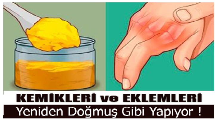 eklem-728x410-1.png