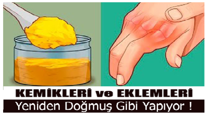 eklem-728x410-2.png